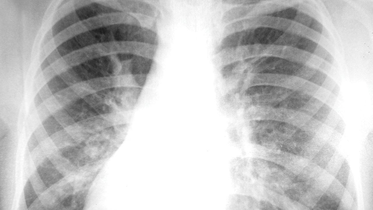 Lung Cancer X Ray