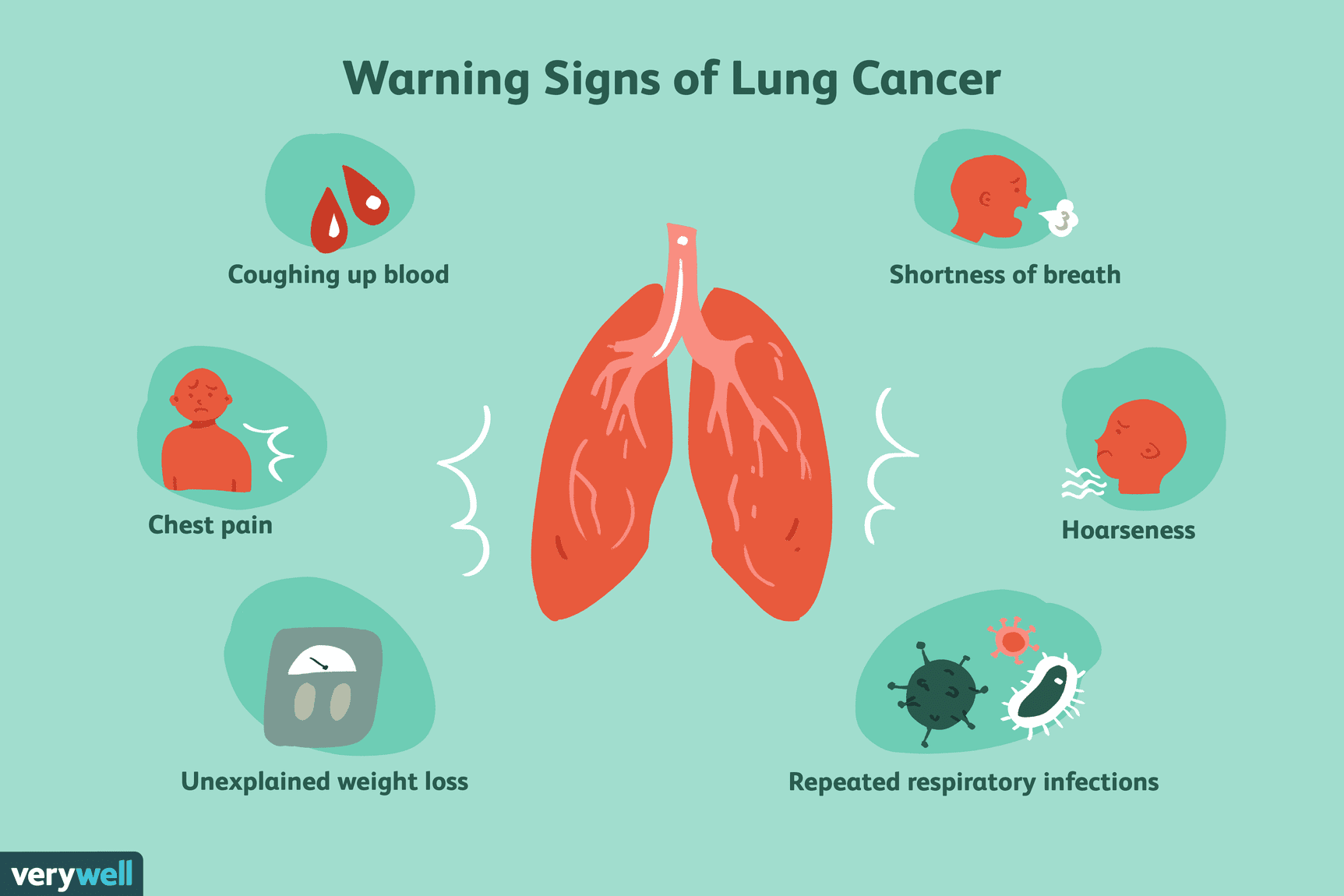 Sign Of Lung Cancer
